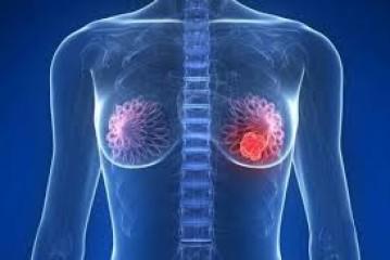 Sobrediagnóstico de cáncer de mama en el cribado con mamografía. Salud pública, clínica y ética