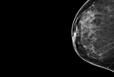 Mammograms more likely to cause unneeded treatment than to save lives