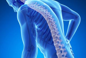 Excesivo rastreo de osteoporosis en mujeres menores de 65 años: estudio de corte transversal