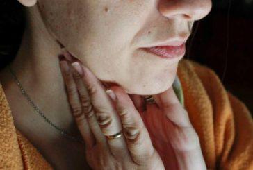 Alerta en Salamanca por un brote de paperas en pacientes que habían sido vacunados